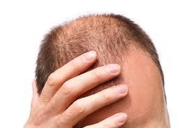 Saç Dökülmesi Nedenleri