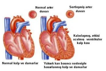 kalp damar ve tansiyon