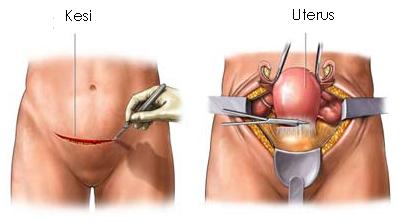 miyom ameliyatı sonrası cinsel ilişki süresi