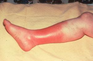 Selülitin Bacaklardaki Görüntüsü