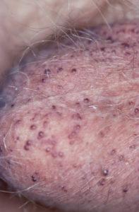 Skrotal Angiokeratoma