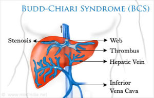 Budd-Chiari Sendromu