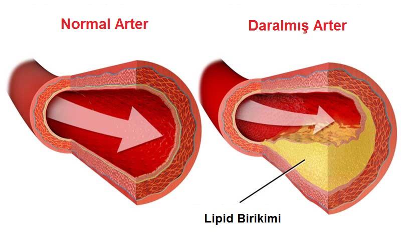 Damar Çeperinde Kolesterol Brikimi