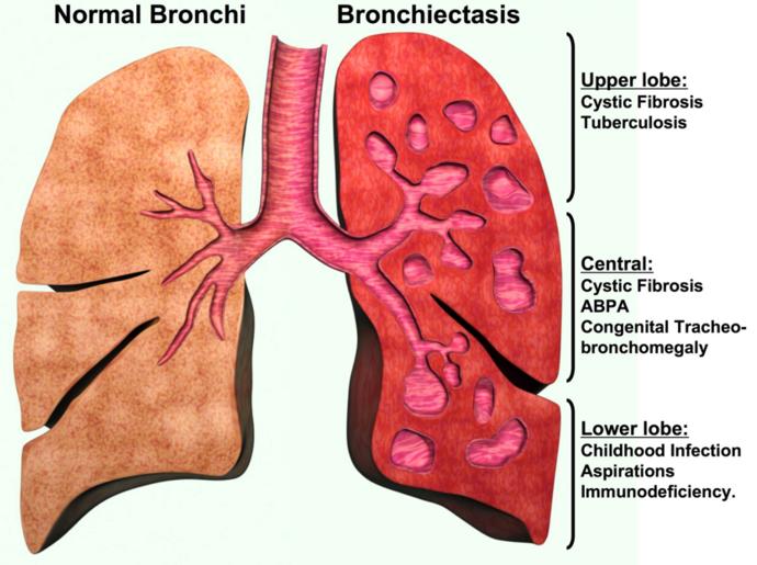 bronşiektazi