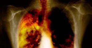 Obstrüktif Akciğer Hastalıkları