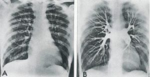 Pulmoner Emboliye 2
